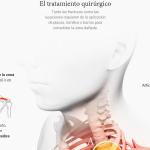 Lesiones más habituales y análisis del mono con airbag